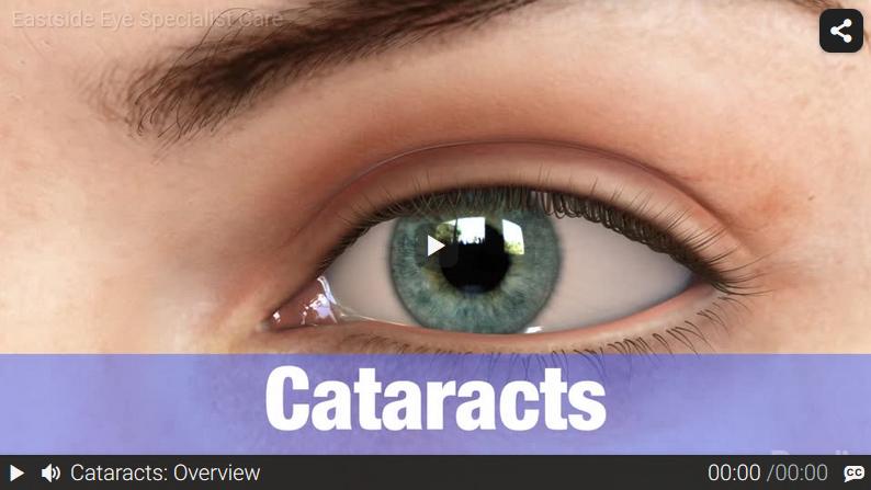 Video: Cataracts