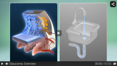 Video: Glaucoma Overview
