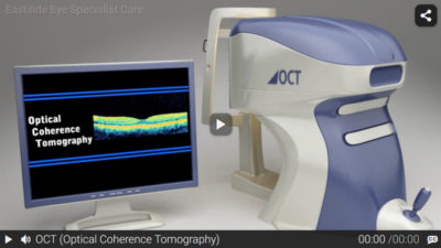 Video: Optical Coherence Tomography