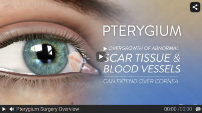 Video: Pterygium Surgery Overview