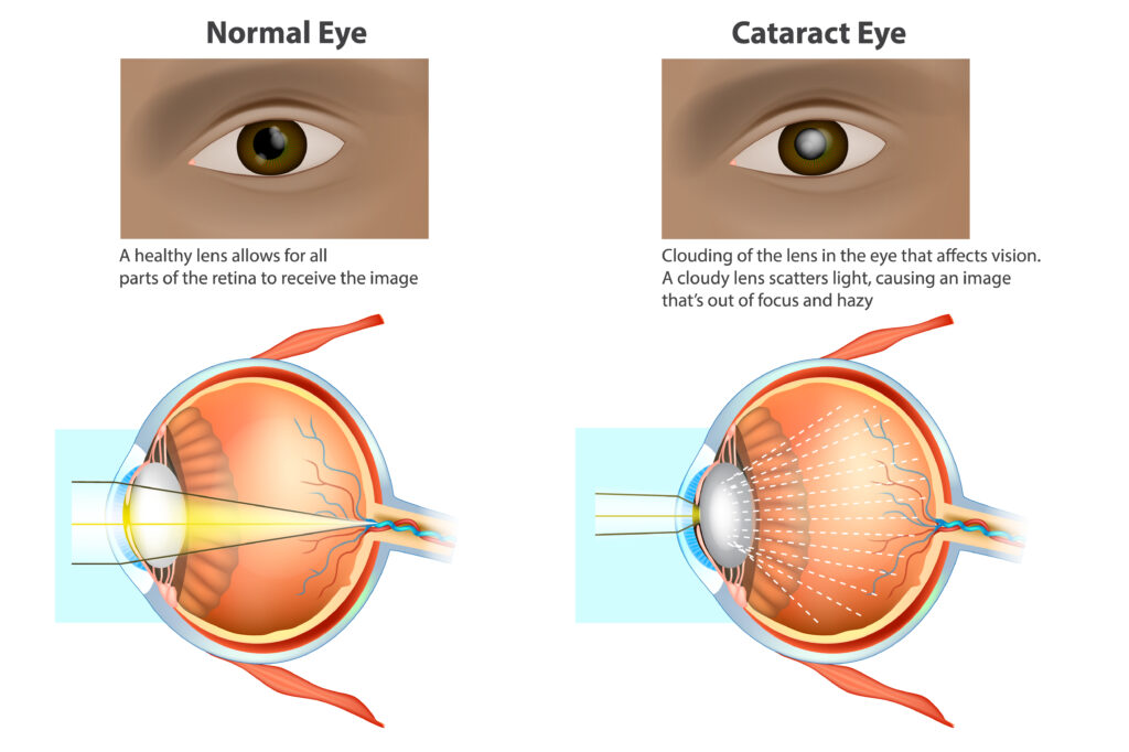 Cataract surgery in Brisbane