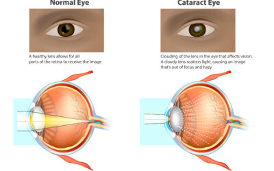 Causes of Early Onset Cataracts